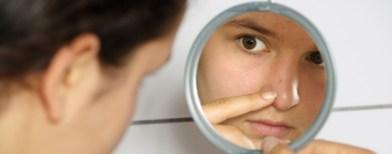 Jerawat Muncul Menjelang Acara Penting. Pencet Atau Tutupi dengan Make-Up? 1