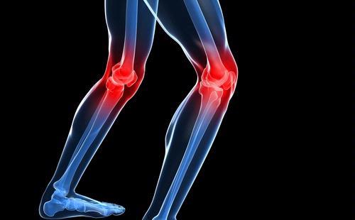 Contoh Skripsi Kedokteran:Hubungan Antara Obesitas Dengan Kejadian Osteoartritis Lutut
