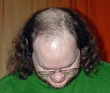 Penyebab dan perawatan rambut rontok