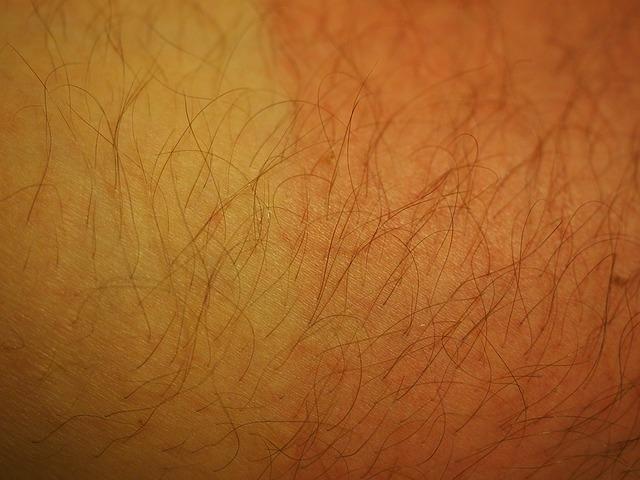 Tanda tanda kanker kulit
