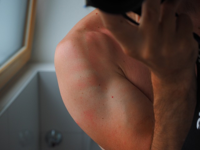 Cara ampuh mengatasi kulit terbakar matahari