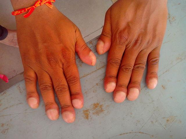 Tanda Tanda Penyakit Jantung - Clubbed fingernails